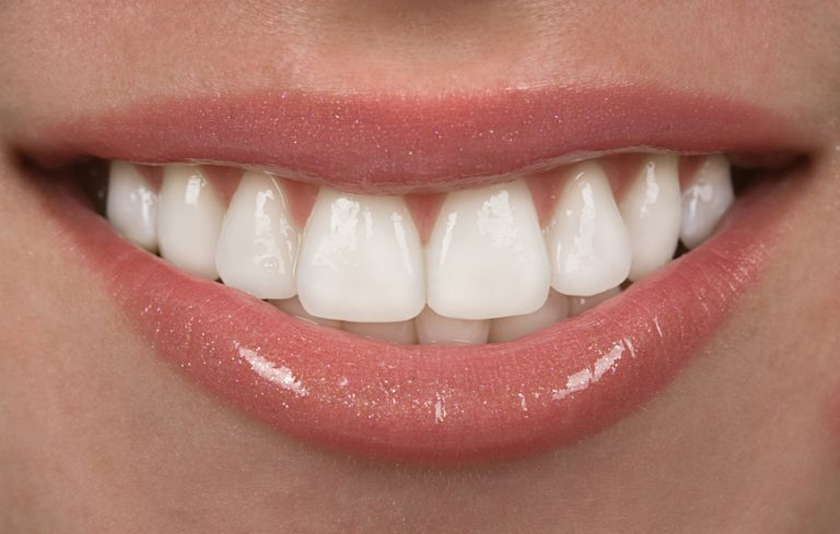 smile after teeth whitening treatment