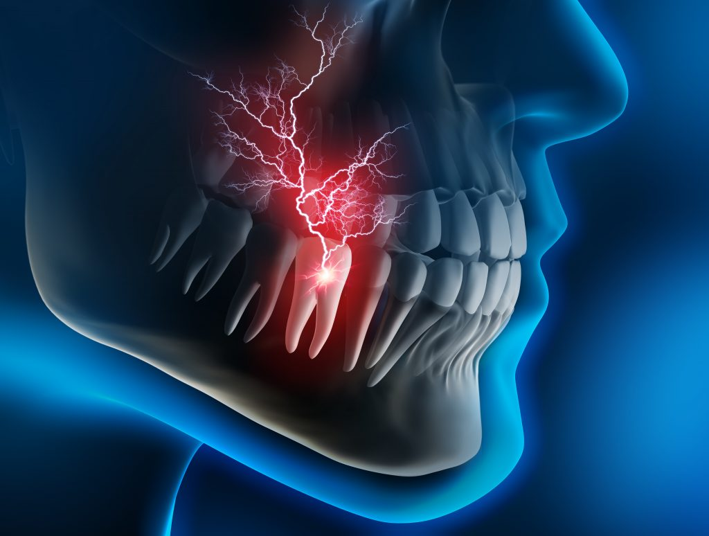 What Counts as a Dental Emergency?